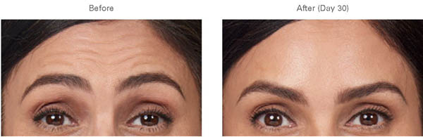 Moderate to Severe Forehead Lines - before and after