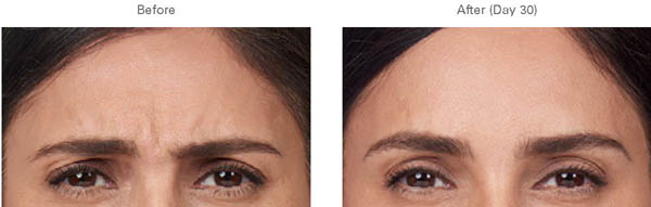 Moderate to severe frown lines - before and after