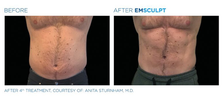 Emsculpt Before and After photo